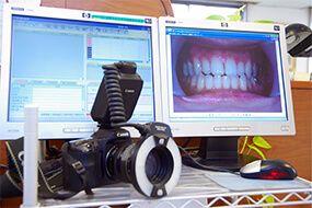 武石歯科医院口腔内写真画像